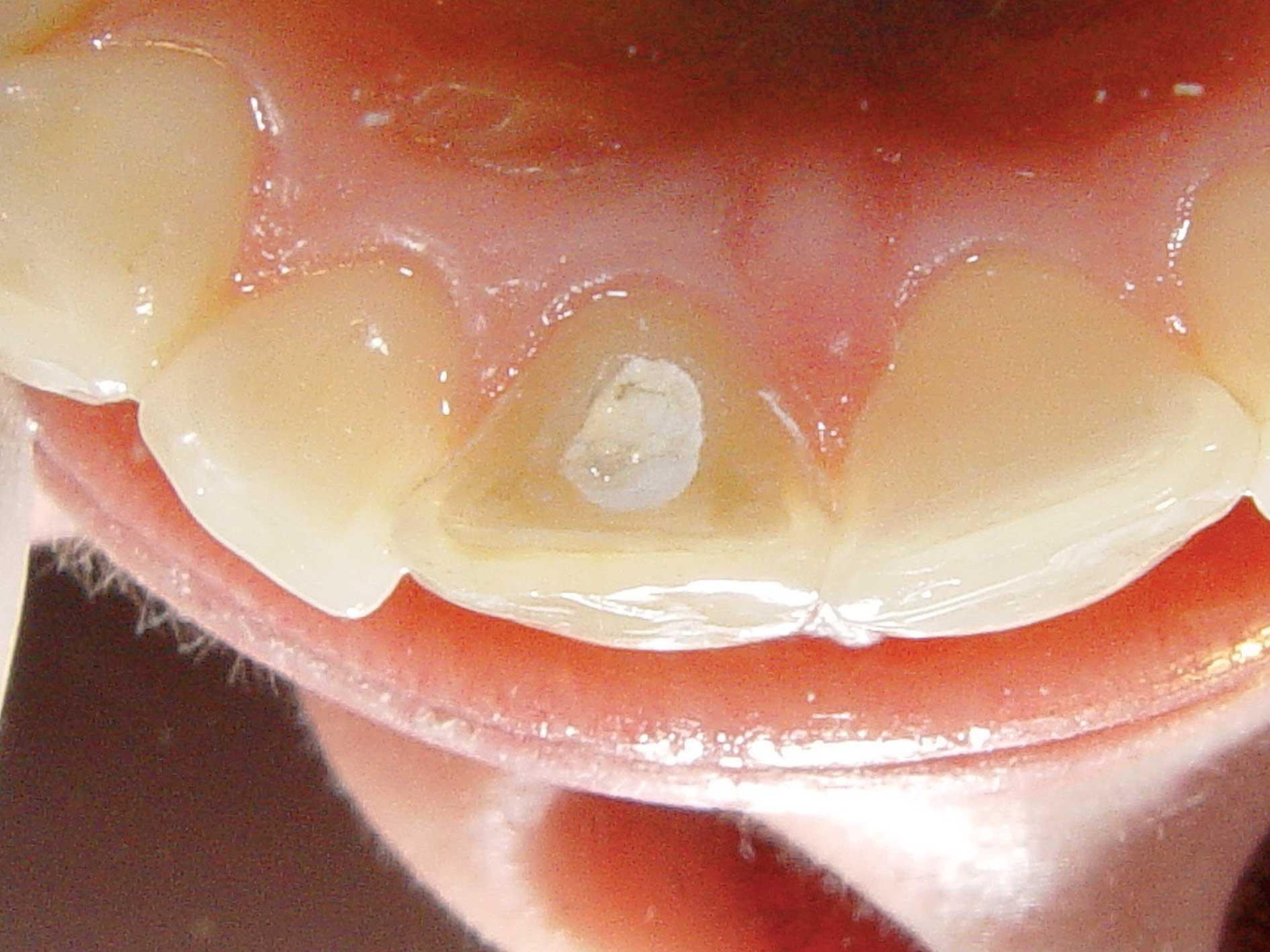 Wybielanie zęba martwego